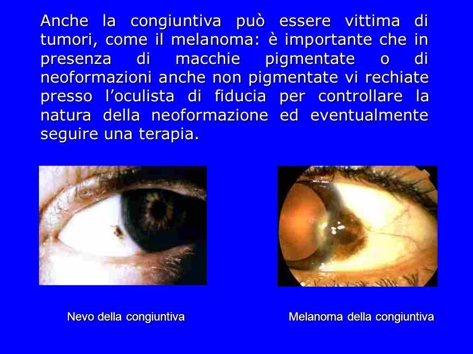 Anche la congiuntiva può essere vittima di tumori, come il melanoma: è importante che in presenza di macchie pigmentate o di neoformazioni anche non p