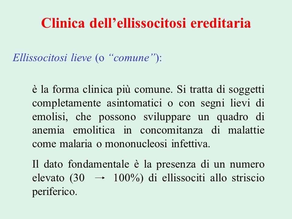 """Clinica dell'ellissocitosi ereditaria Ellissocitosi lieve (o """"comune""""): è la forma clinica più comune. Si tratta di soggetti completamente asintomatic"""