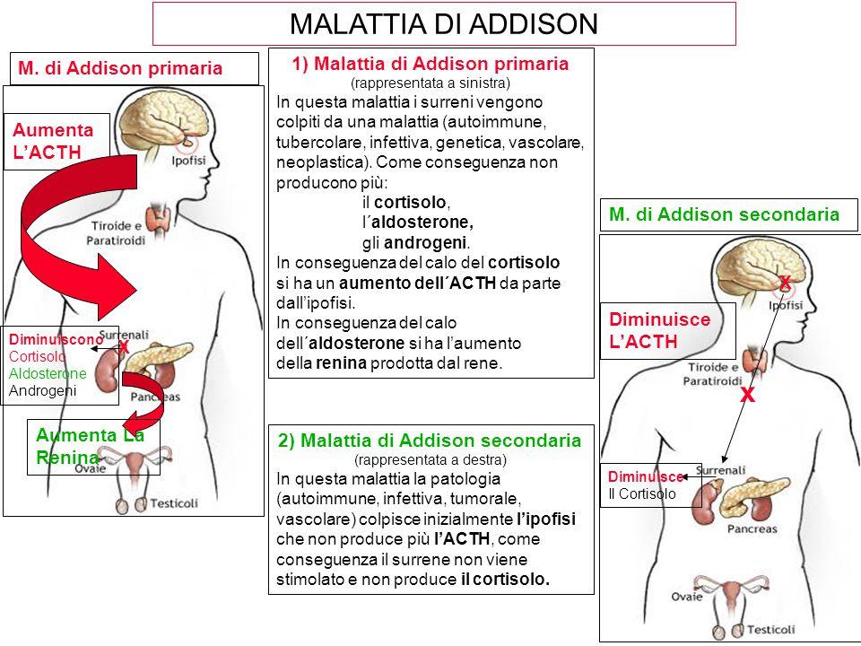 MALATTIA DI ADDISON Aumenta L'ACTH Diminuiscono Cortisolo Aldosterone Androgeni 1) Malattia di Addison primaria (rappresentata a sinistra) In questa m
