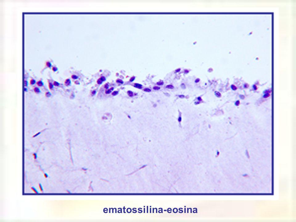 ematossilina-eosina