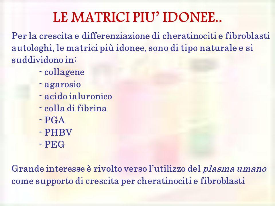 LE MATRICI PIU' IDONEE..