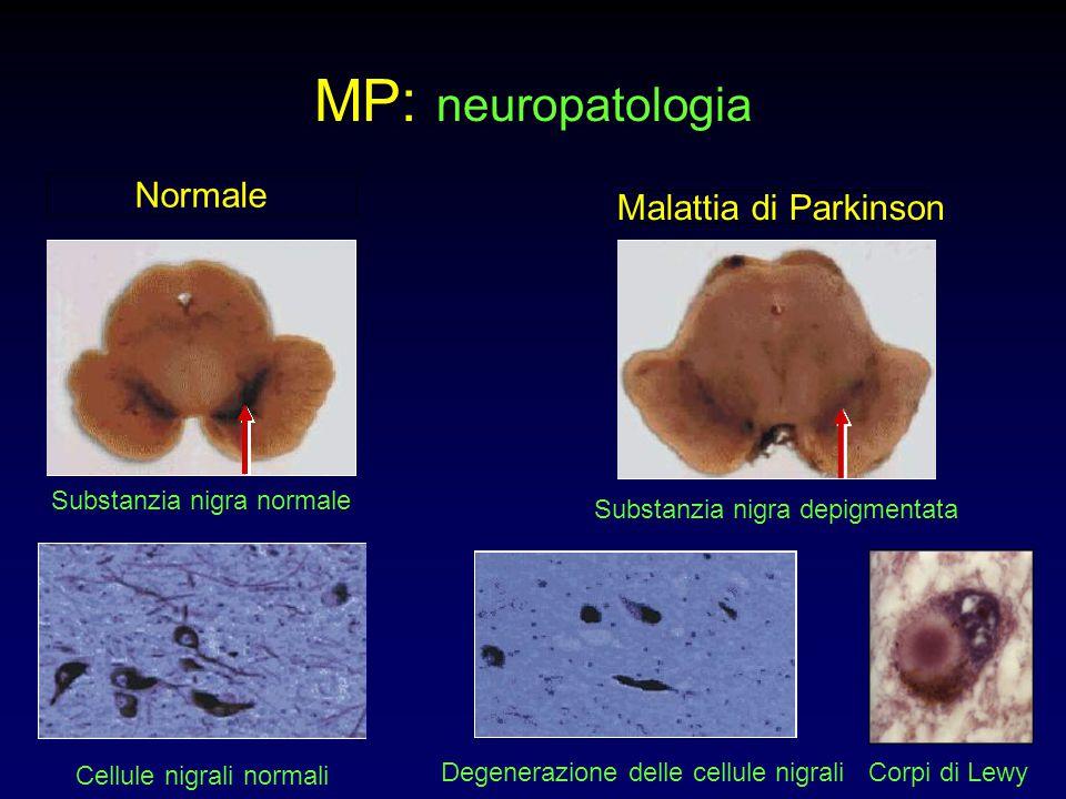 MP: neuropatologia Normale Malattia di Parkinson Substanzia nigra normale Substanzia nigra depigmentata Cellule nigrali normali Degenerazione delle ce