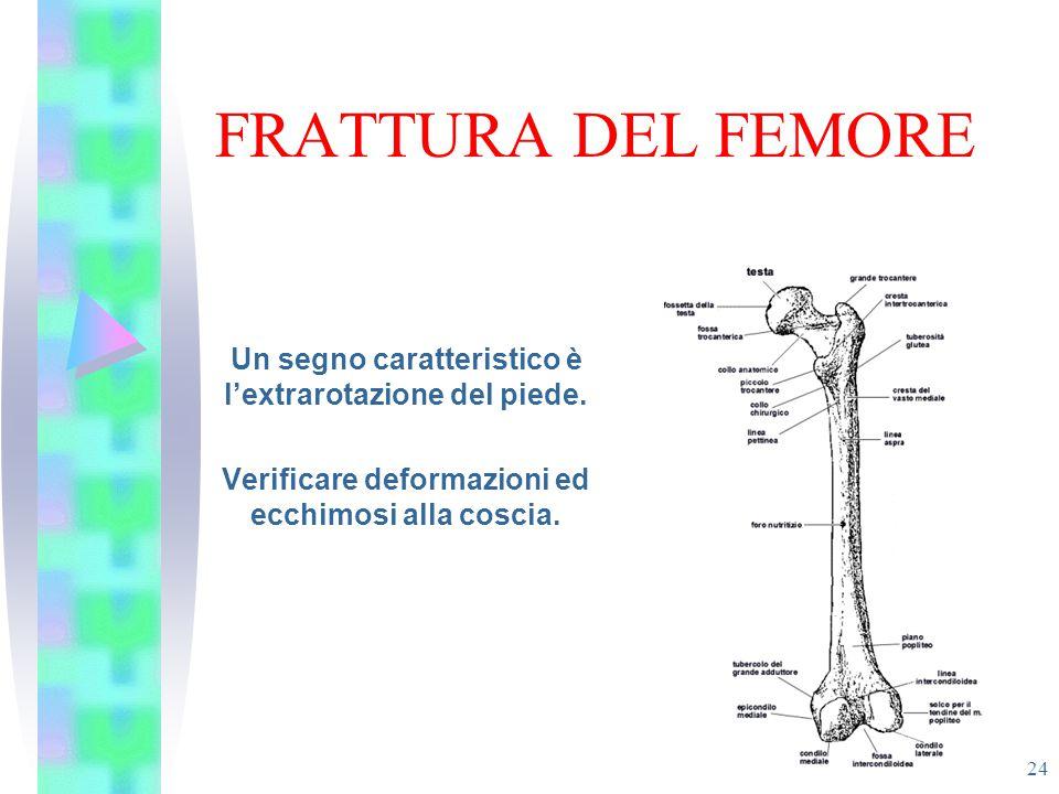 FRATTURA DEL FEMORE 24 Un segno caratteristico è l'extrarotazione del piede. Verificare deformazioni ed ecchimosi alla coscia.