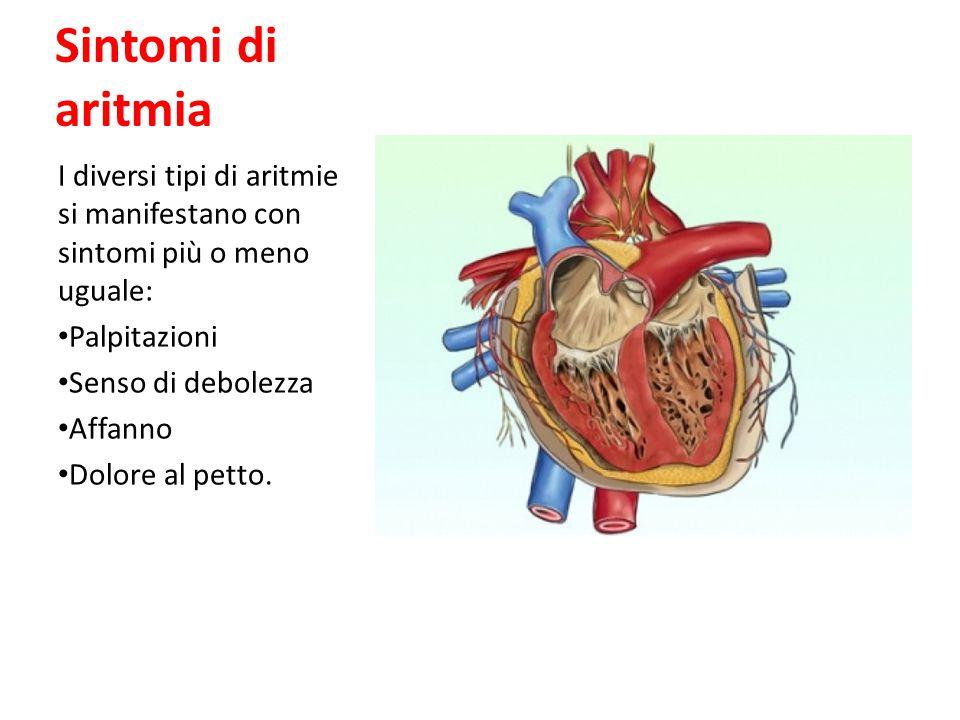Sintomi di aritmia I diversi tipi di aritmie si manifestano con sintomi più o meno uguale: Palpitazioni Senso di debolezza Affanno Dolore al petto.