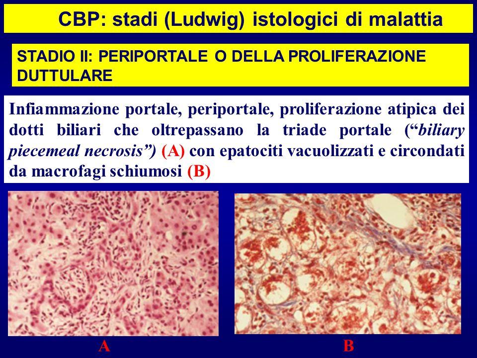 CBP: stadi (Ludwig) istologici di malattia Infiammazione portale, periportale, proliferazione atipica dei dotti biliari che oltrepassano la triade por