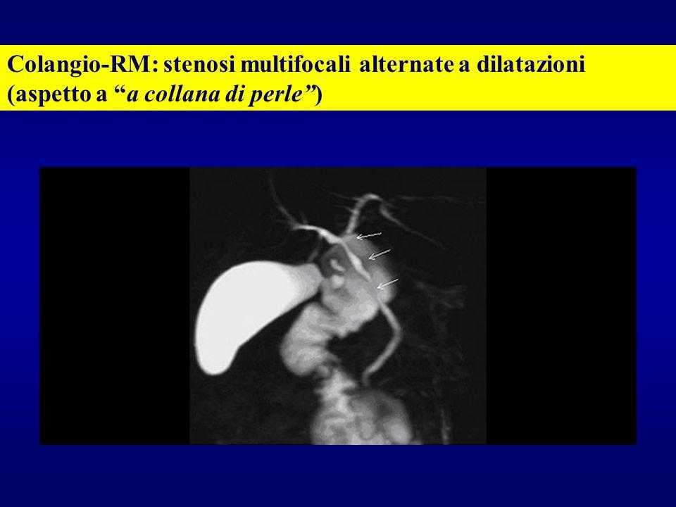 """Colangio-RM: stenosi multifocali alternate a dilatazioni (aspetto a """"a collana di perle"""")"""
