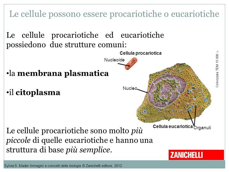 Le cellule procariotiche ed eucariotiche possiedono due strutture comuni: la membrana plasmatica il citoplasma Le cellule procariotiche sono molto più