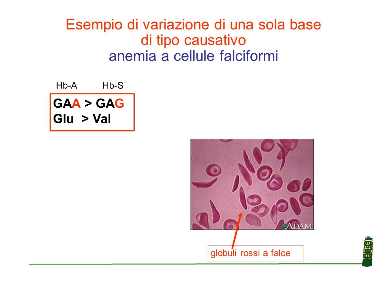 globuli rossi a falce GAA > GAG Glu > Val Esempio di variazione di una sola base di tipo causativo anemia a cellule falciformi Hb-AHb-S
