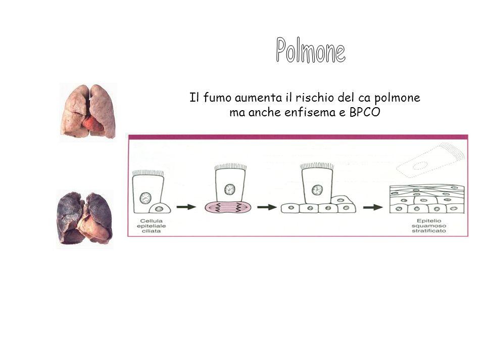 Il fumo aumenta il rischio del ca polmone ma anche enfisema e BPCO