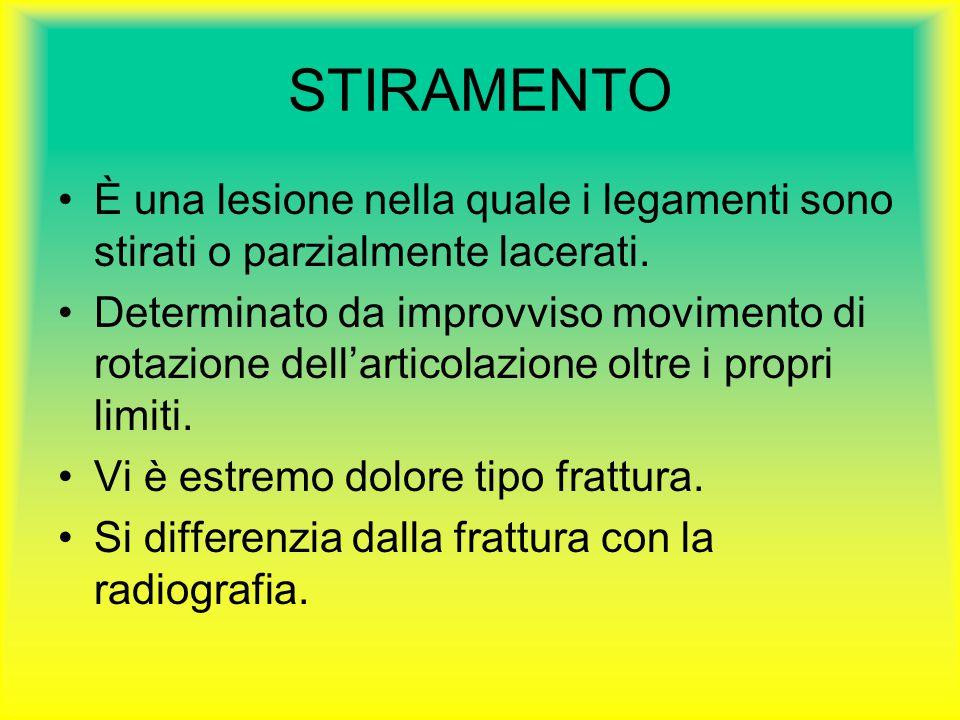 STIRAMENTO È una lesione nella quale i legamenti sono stirati o parzialmente lacerati. Determinato da improvviso movimento di rotazione dell'articolaz