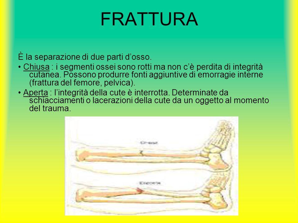 FRATTURA È la separazione di due parti d'osso. Chiusa : i segmenti ossei sono rotti ma non c'è perdita di integrità cutanea. Possono produrre fonti ag