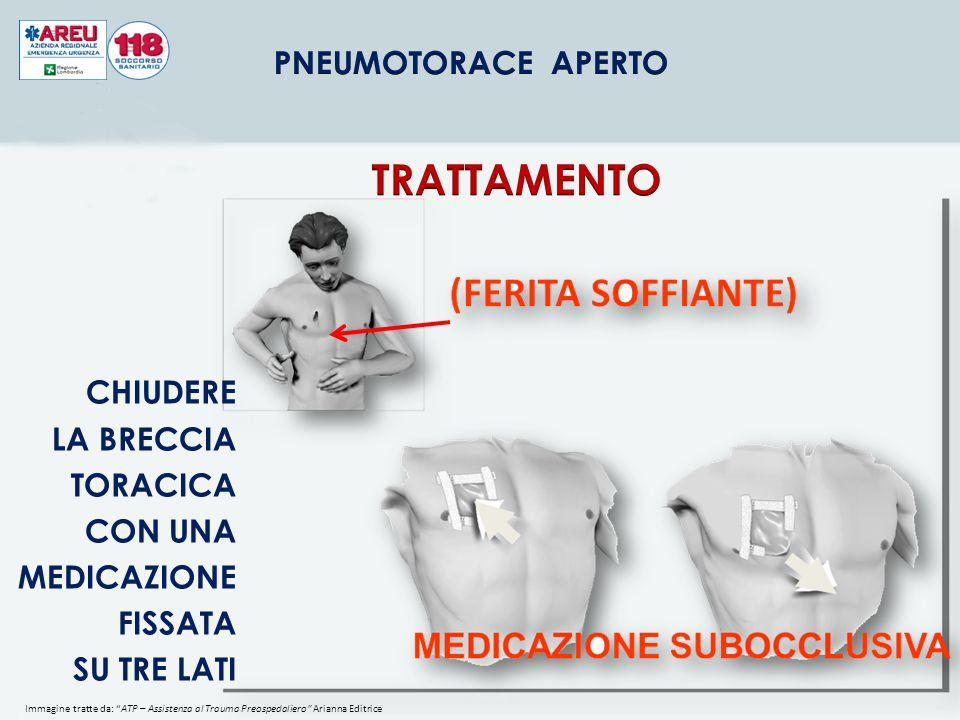 FERITA SOFFIANTE DEL TORACE 9