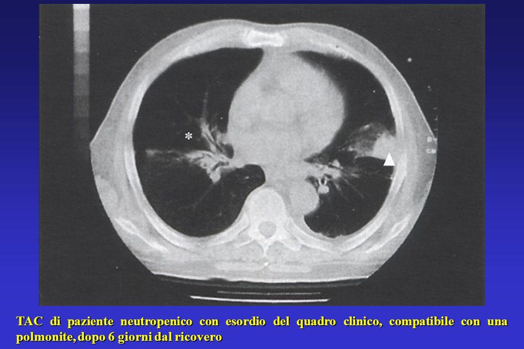 TAC di paziente neutropenico con esordio del quadro clinico, compatibile con una polmonite, dopo 6 giorni dal ricovero