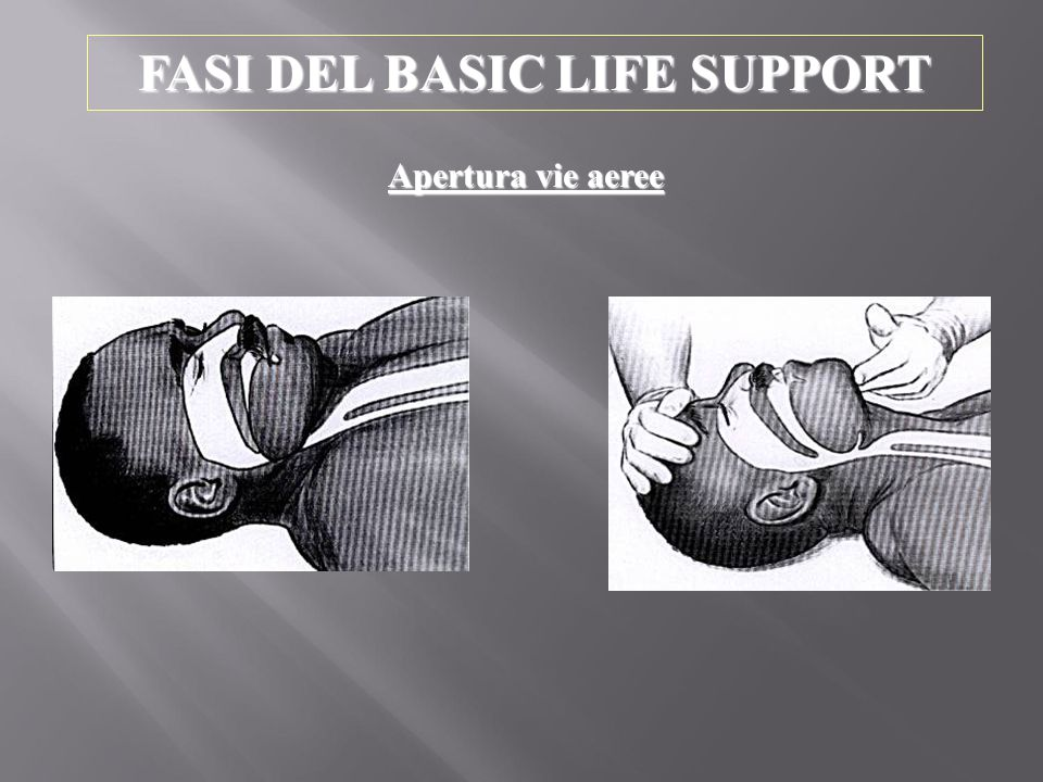 FASI DEL BASIC LIFE SUPPORT Apertura vie aeree