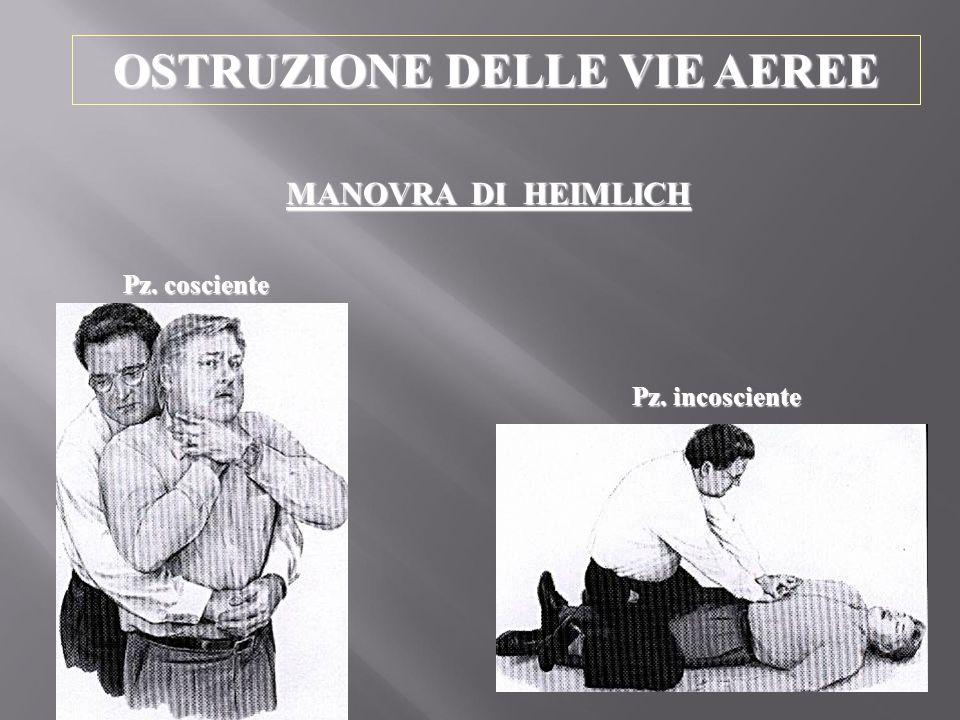 OSTRUZIONE DELLE VIE AEREE MANOVRA DI HEIMLICH Pz. cosciente Pz. incosciente