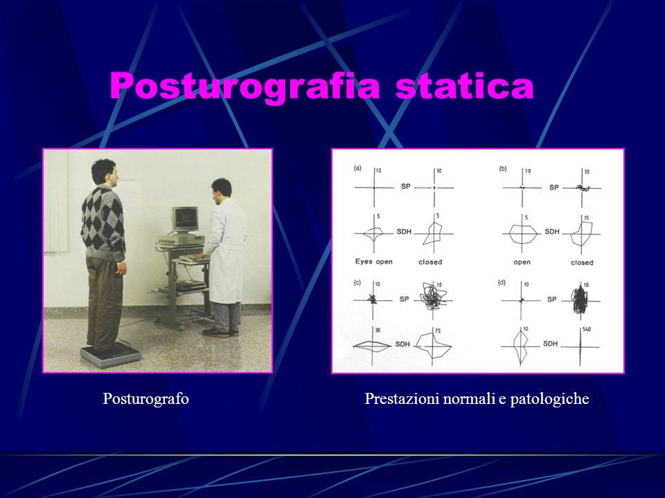 Posturografia statica Posturografo Prestazioni normali e patologiche