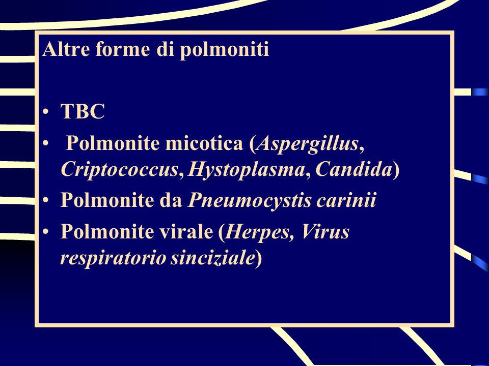 Altre forme di polmoniti TBC Polmonite micotica (Aspergillus, Criptococcus, Hystoplasma, Candida) Polmonite da Pneumocystis carinii Polmonite virale (