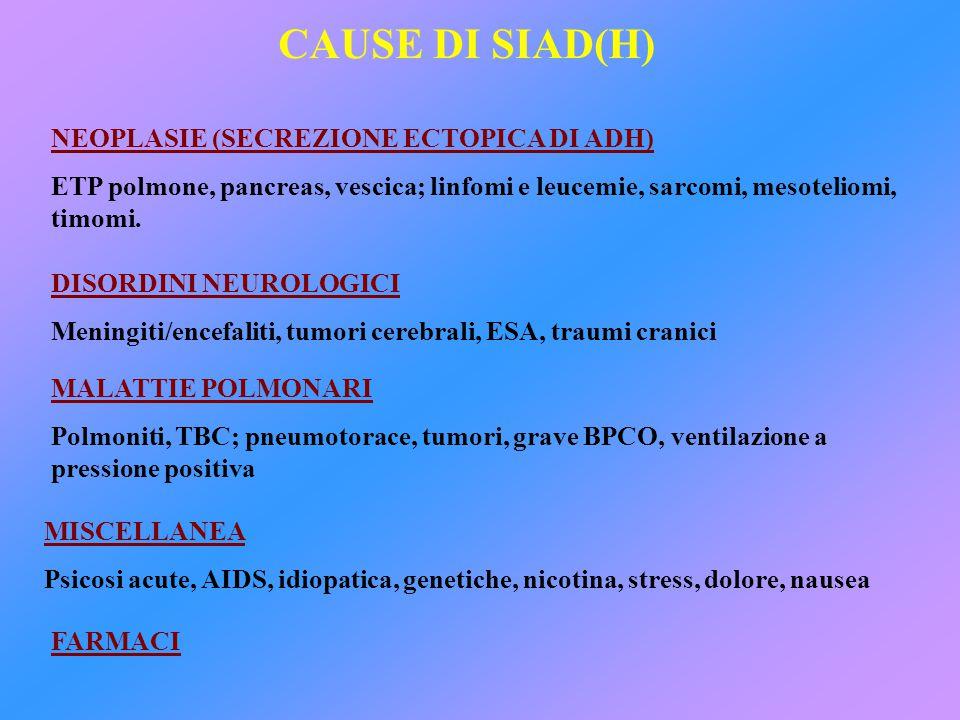 SIAD(H) E PATOLOGIE POLMONARI Secrezione ectopica di ADH da parte di neoplasie polmonari maligne.