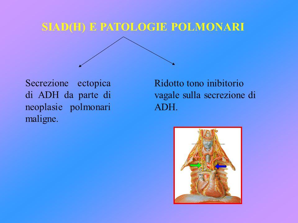 SIAD(H) E PATOLOGIE POLMONARI Secrezione ectopica di ADH da parte di neoplasie polmonari maligne. Ridotto tono inibitorio vagale sulla secrezione di A