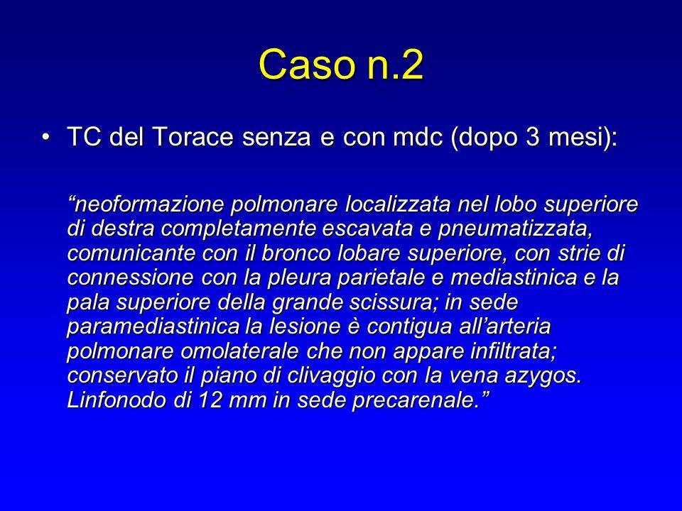 """TC del Torace senza e con mdc (dopo 3 mesi):TC del Torace senza e con mdc (dopo 3 mesi): """"neoformazione polmonare localizzata nel lobo superiore di de"""