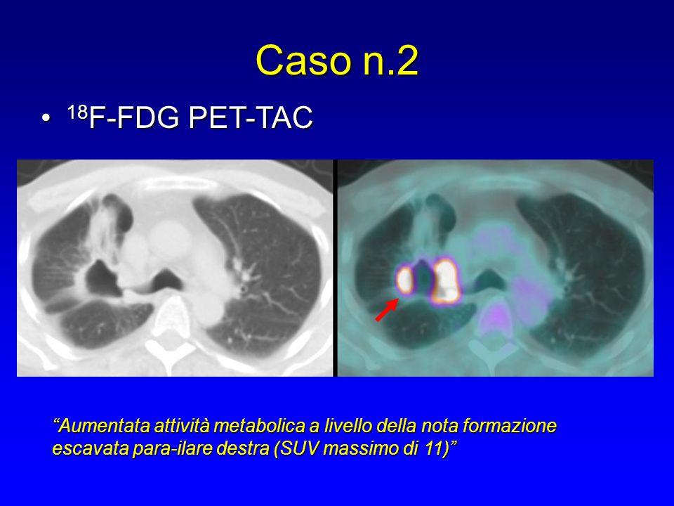 """18 F-FDG PET-TAC 18 F-FDG PET-TAC """"Aumentata attività metabolica a livello della nota formazione escavata para-ilare destra (SUV massimo di 11)"""""""