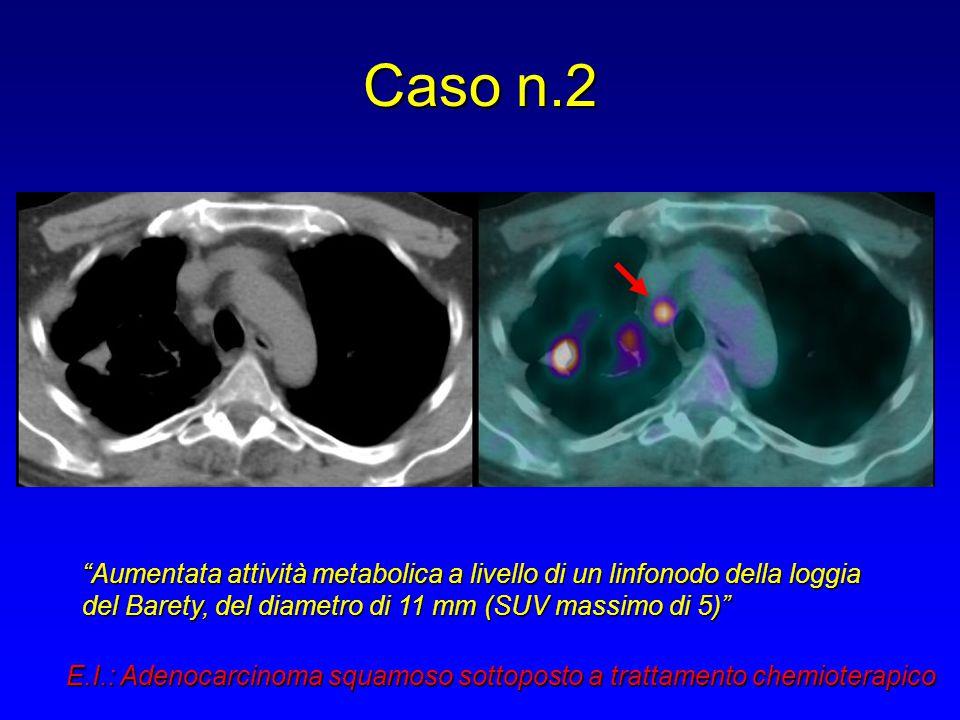 """Caso n.2 """"Aumentata attività metabolica a livello di un linfonodo della loggia del Barety, del diametro di 11 mm (SUV massimo di 5)"""" E.I.: Adenocarcin"""
