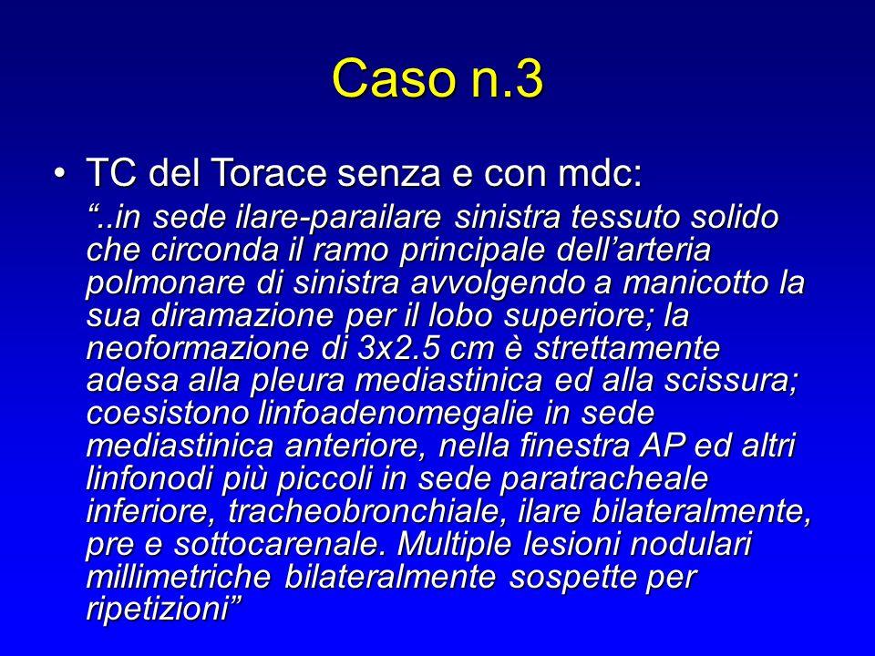 """Caso n.3 TC del Torace senza e con mdc:TC del Torace senza e con mdc: """"..in sede ilare-parailare sinistra tessuto solido che circonda il ramo principa"""