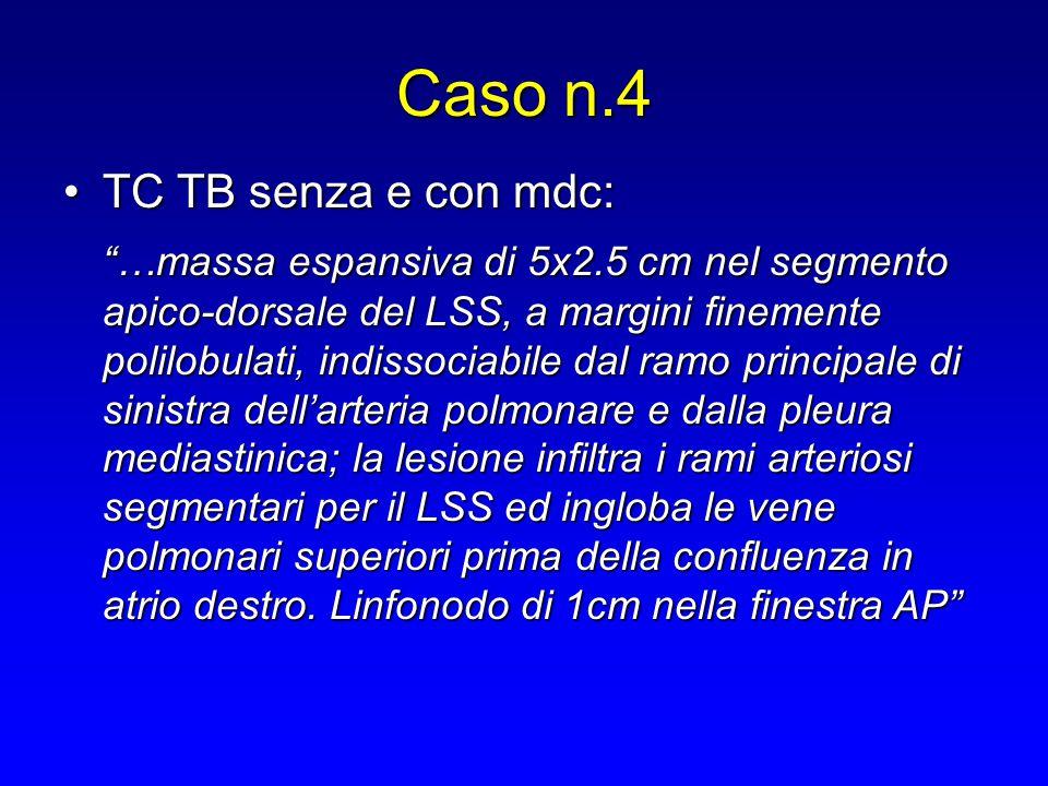"""TC TB senza e con mdc:TC TB senza e con mdc: """"…massa espansiva di 5x2.5 cm nel segmento apico-dorsale del LSS, a margini finemente polilobulati, indis"""