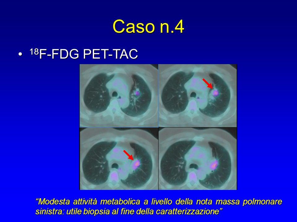 """Caso n.4 18 F-FDG PET-TAC 18 F-FDG PET-TAC """"Modesta attività metabolica a livello della nota massa polmonare sinistra: utile biopsia al fine della car"""