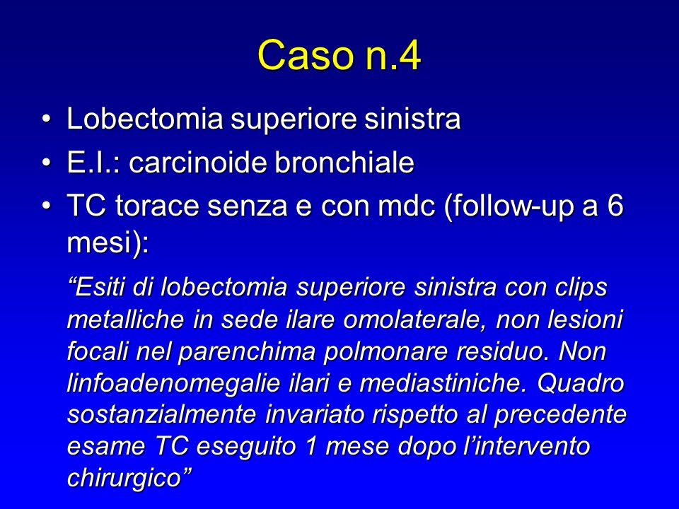 Caso n.4 Lobectomia superiore sinistraLobectomia superiore sinistra E.I.: carcinoide bronchialeE.I.: carcinoide bronchiale TC torace senza e con mdc (