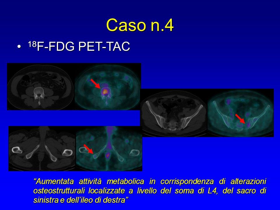 """18 F-FDG PET-TAC 18 F-FDG PET-TAC Caso n.4 """"Aumentata attività metabolica in corrispondenza di alterazioni osteostrutturali localizzate a livello del"""
