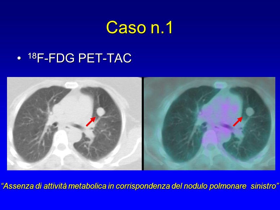 Caso n.1 TC torace senza e con mdc (dopo 2 anni)TC torace senza e con mdc (dopo 2 anni) Invariato per morfologia e dimensioni il nodulo polmonare localizzato nel lobo polmonare superiore di sinistra rispetto al precedente esame TC
