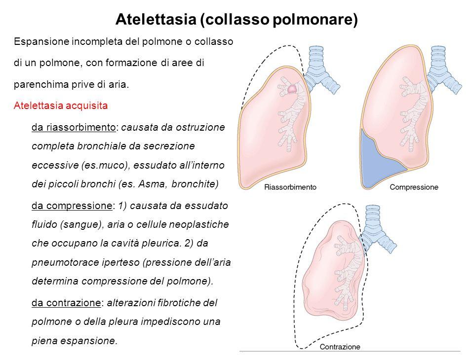 Atelettasia (collasso polmonare) Espansione incompleta del polmone o collasso di un polmone, con formazione di aree di parenchima prive di aria. Atele