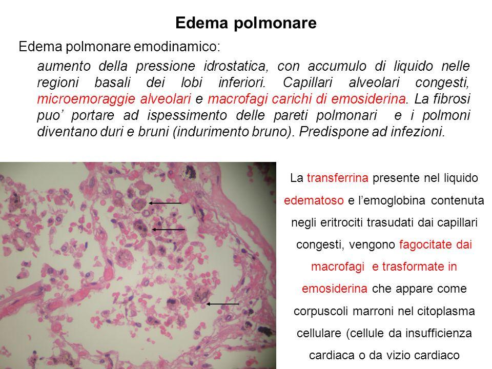 Edema polmonare Edema polmonare emodinamico: aumento della pressione idrostatica, con accumulo di liquido nelle regioni basali dei lobi inferiori. Cap