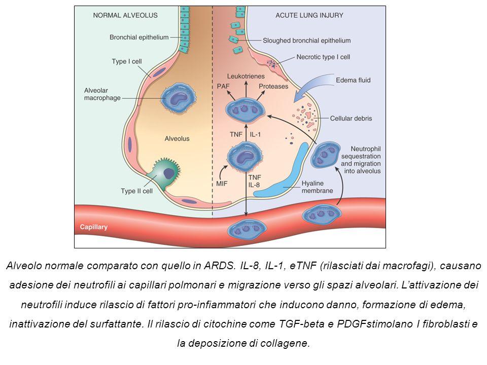 Alveolo normale comparato con quello in ARDS. IL-8, IL-1, eTNF (rilasciati dai macrofagi), causano adesione dei neutrofili ai capillari polmonari e mi