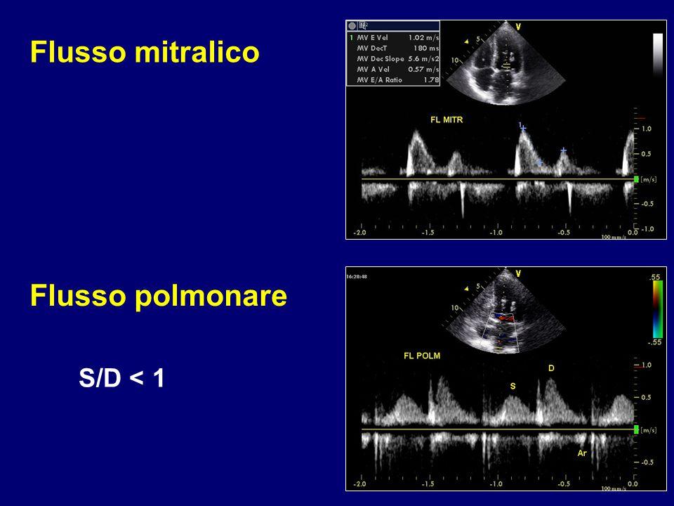 S/D < 1 Flusso mitralico Flusso polmonare