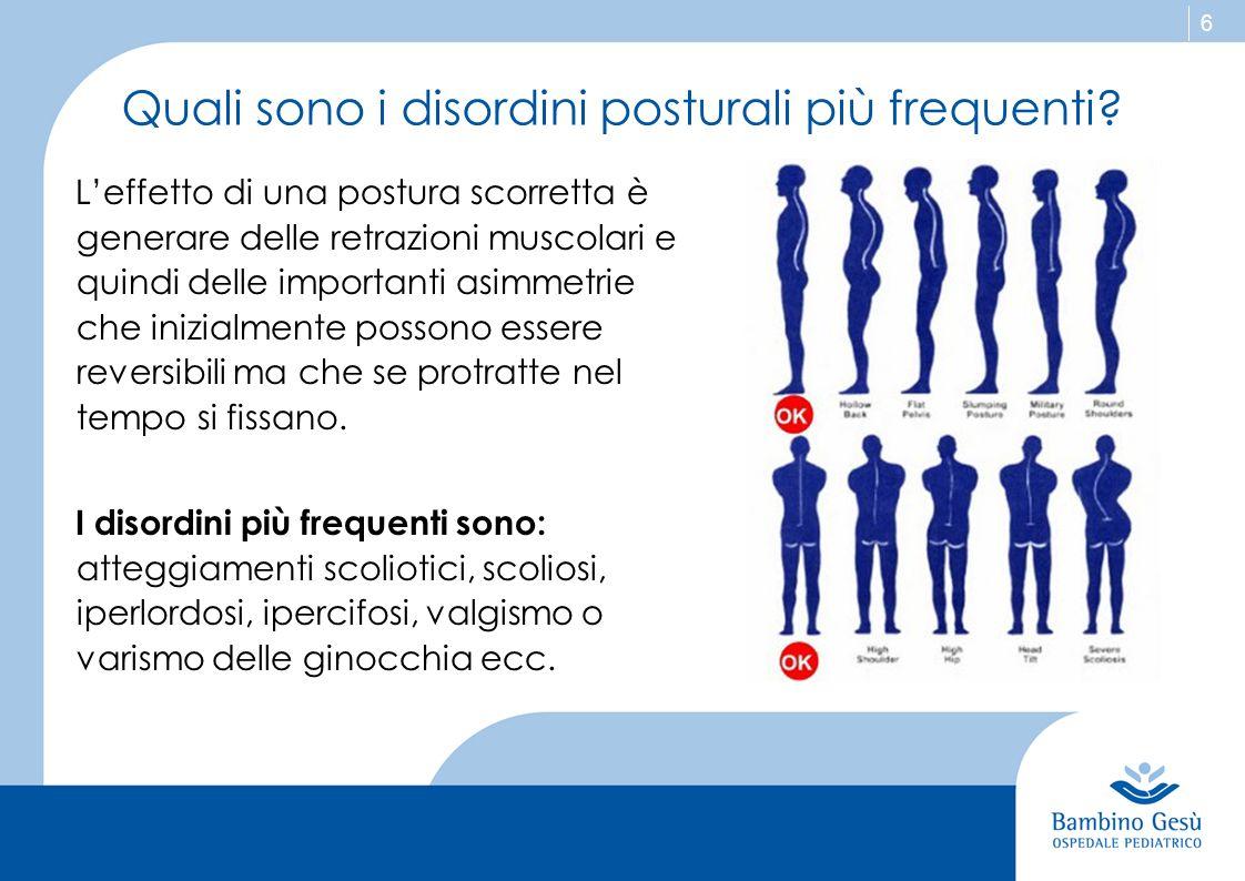 6 Quali sono i disordini posturali più frequenti? L'effetto di una postura scorretta è generare delle retrazioni muscolari e quindi delle importanti a