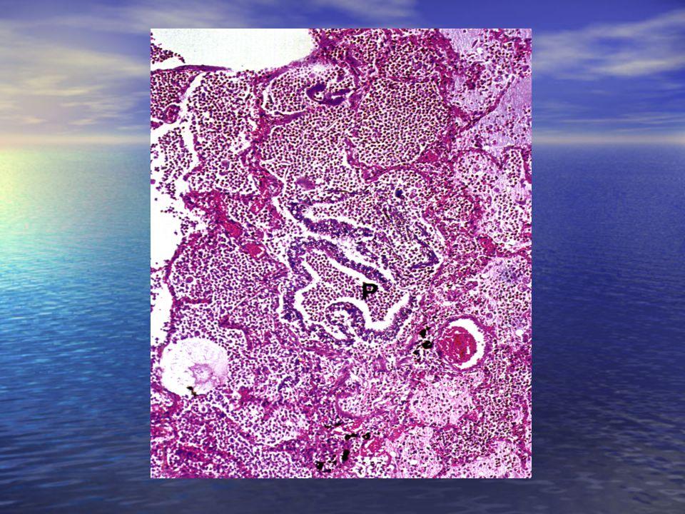 -broncopolmonite a focolai disseminati che appaiono circoscritti e separati da tratti di parenchima aerato, intensamente congestizio ed edematoso -bro