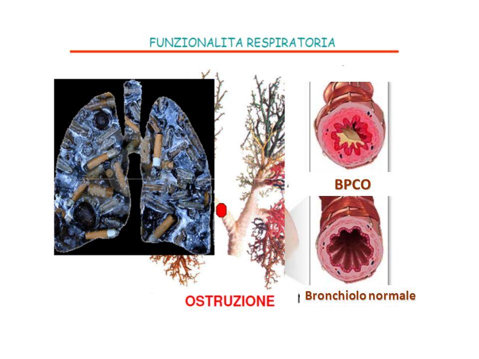 Bronchiolo normale BPCO