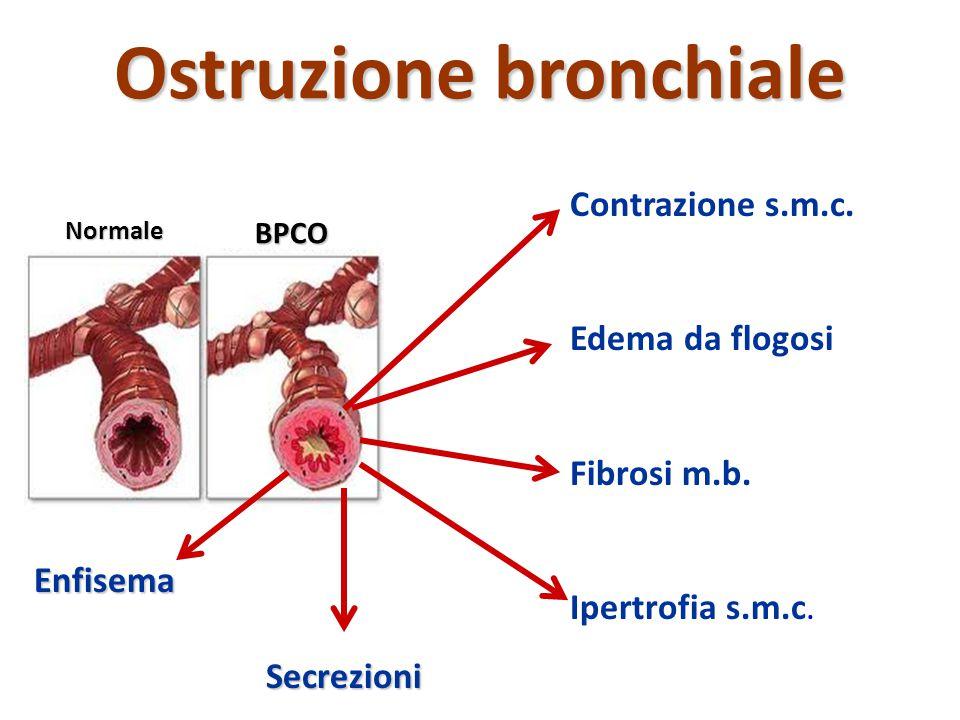 Ostruzione bronchiale Contrazione s.m.c. Edema da flogosi Fibrosi m.b. Ipertrofia s.m.c. Secrezioni Enfisema BPCO Normale