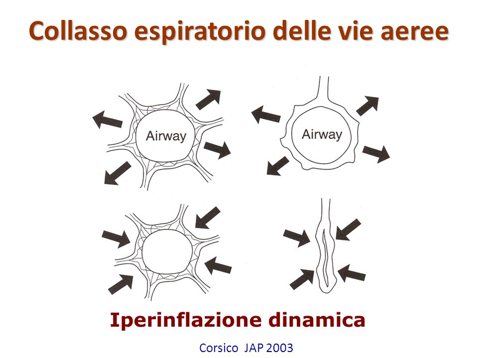 Attilio Pietra Collasso espiratorio delle vie aeree Corsico JAP 2003 Iperinflazione dinamica