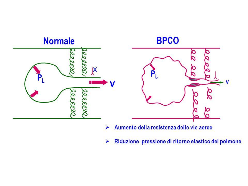 Normale BPCO  Aumento della resistenza delle vie aeree  Riduzione pressione di ritorno elastico del polmone PLPL V. PLPL V. X