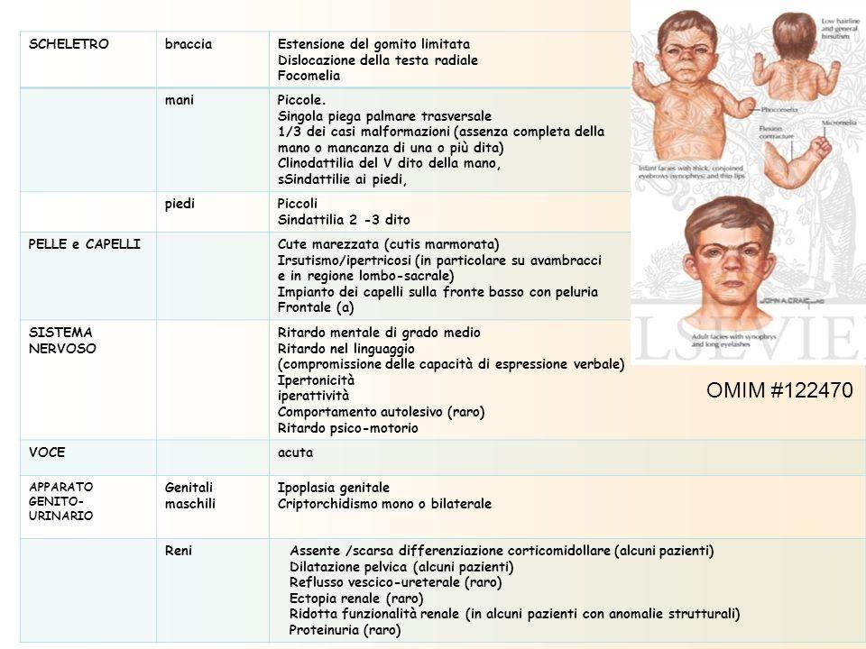 SCHELETRObracciaEstensione del gomito limitata Dislocazione della testa radiale Focomelia maniPiccole. Singola piega palmare trasversale 1/3 dei casi