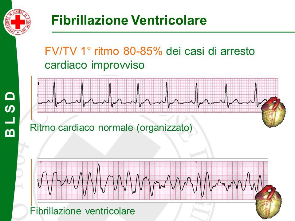 Fibrillazione Ventricolare FV/TV 1° ritmo 80-85% dei casi di arresto cardiaco improvviso Ritmo cardiaco normale (organizzato) Fibrillazione ventricola
