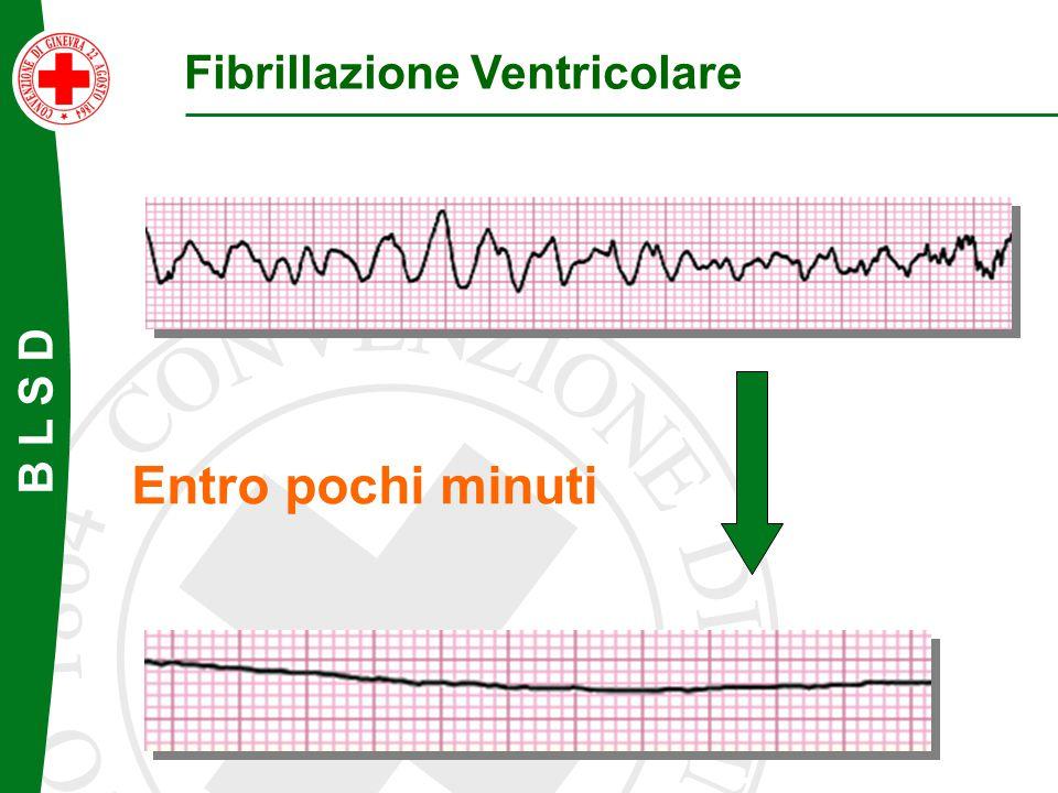 B L S D Entro pochi minuti Fibrillazione Ventricolare