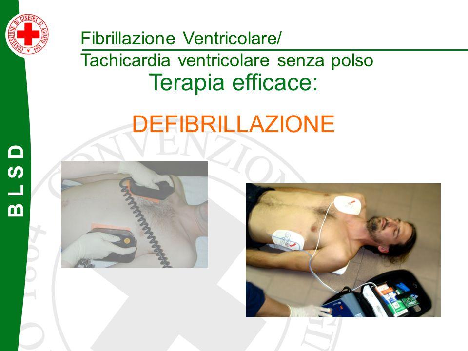 B L S D Terapia efficace: DEFIBRILLAZIONE Fibrillazione Ventricolare/ Tachicardia ventricolare senza polso