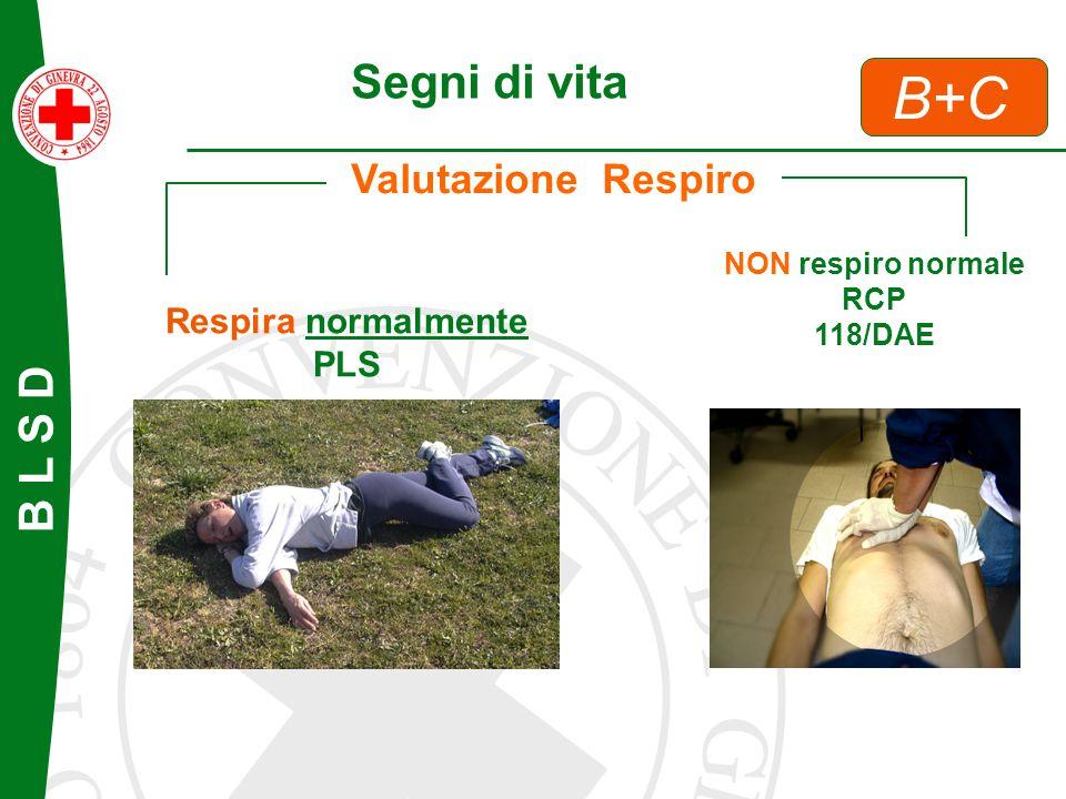 B L S D B+C Segni di vita Valutazione Respiro Respira normalmente PLS NON respiro normale RCP 118/DAE