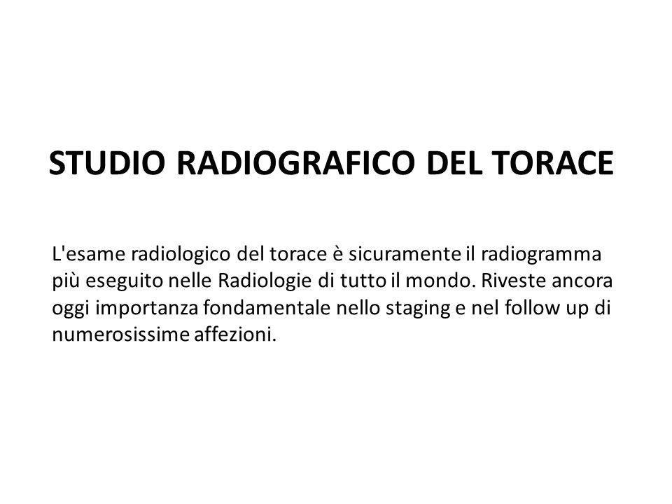 STUDIO RADIOGRAFICO DEL TORACE L'esame radiologico del torace è sicuramente il radiogramma più eseguito nelle Radiologie di tutto il mondo. Riveste an