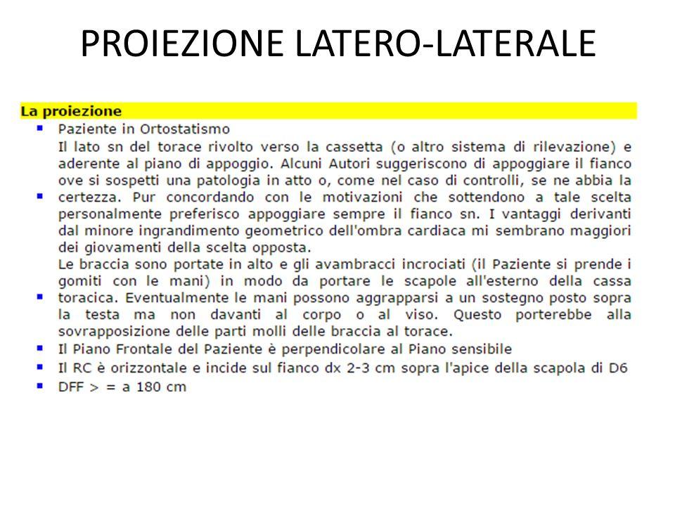 PROIEZIONE LATERO-LATERALE