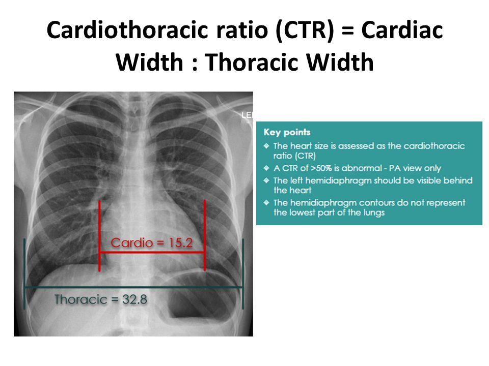 Cardiothoracic ratio (CTR) = Cardiac Width : Thoracic Width